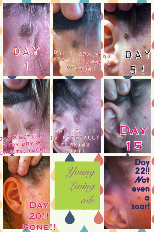 """""""I had a concerning mole. I say had, because after applying YL frankincense and oregano several times a day in just 20 days the concerning mole is gone!! Praise The Lord!! Needed pics for myself and now for dermatologist, so he can see what I was concerned about. I applied coconut oil then frankincense then oregano several times a day."""" Order as wholesale member here = https://www.youngliving.com/signup/?site=USsponsorid=1549458enrollerid=1549458"""