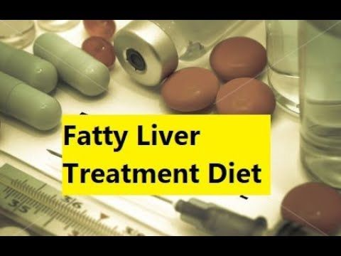 Fatty Liver Treatment Diet - Say Goodbye To Fatty Liver