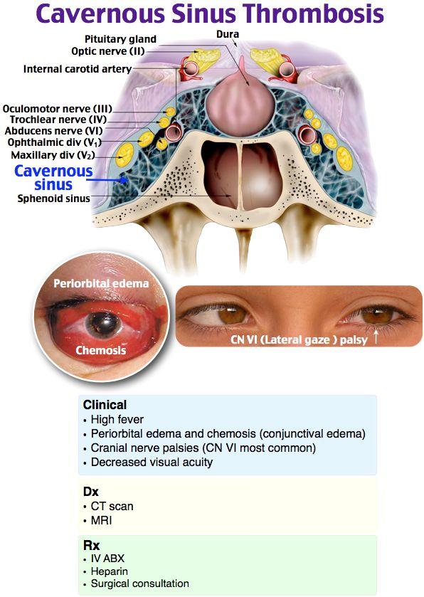 334 besten cranio Bilder auf Pinterest   Radiologie, Anatomie und ...