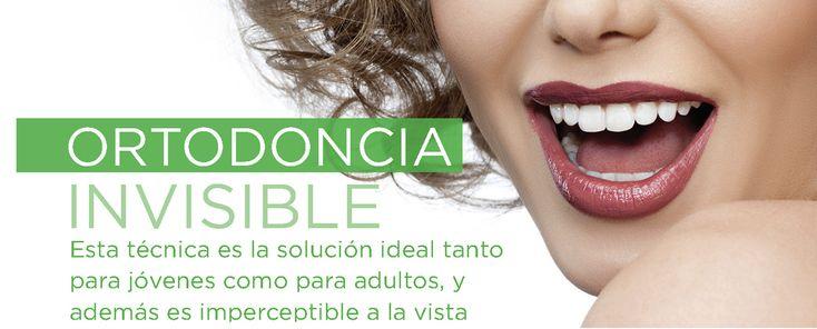 En Clínica Smilodon trabajamos todos los tratamientos de ortodoncia. La Ortodoncia Invisible es la solución ideal tanto para jóvenes como para adultos, y además es imperceptible a la vista.