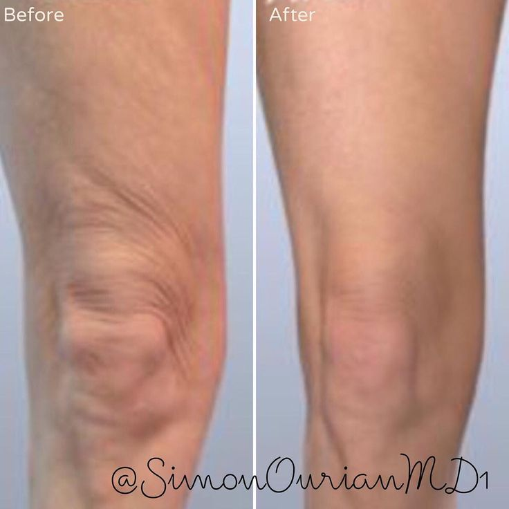 """""""Nonsurgical Skin tightening of knees and front of thighs Treatment: USRF. Skin tightening Purpose: To tighten the su dermal tissue and the skin of…"""""""