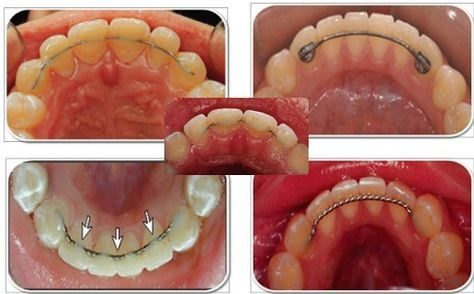 Fixed (permanent) orthodontic retainer - Google Search