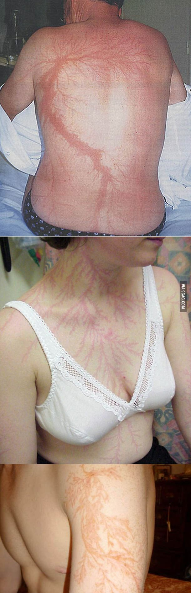 If you get struck by lightning you get scars like these... or die ...
