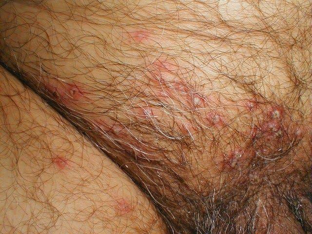 Sign of Genital Herpes on Man ~ Herpes Genital