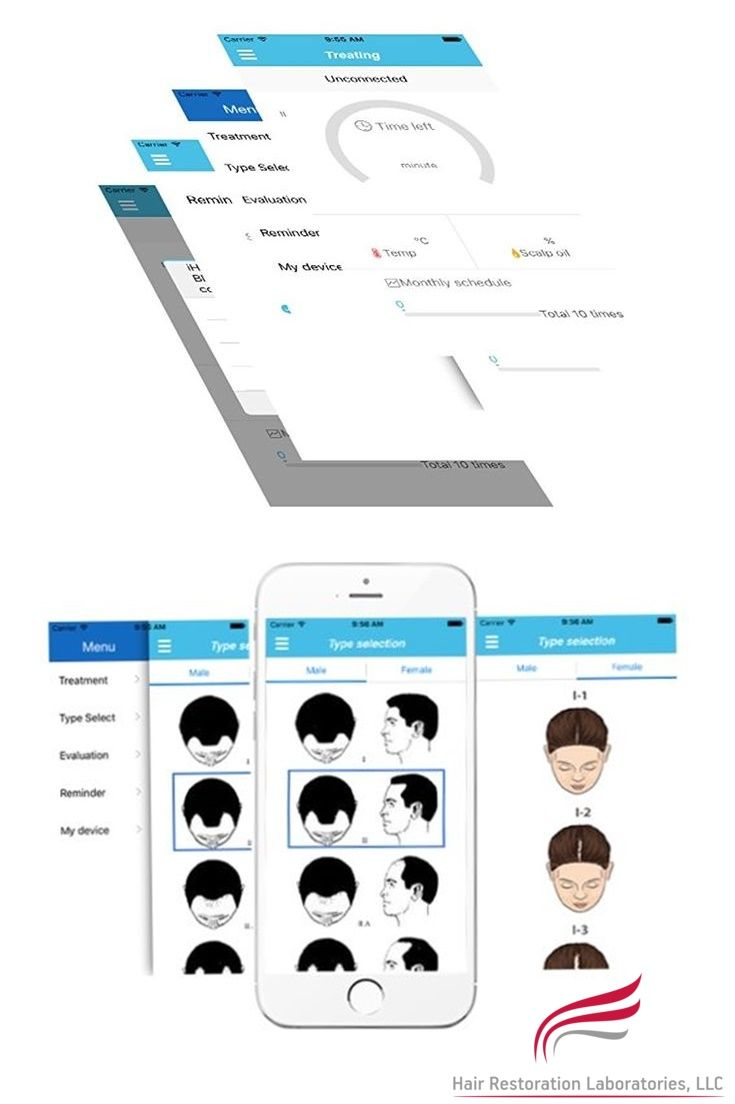 Laser Helmet syncs with a FREE app available on both the IPhone and Android app stores #thickerhair #damagedhaircare #messyhairdontcare #bald #balding #baldhead