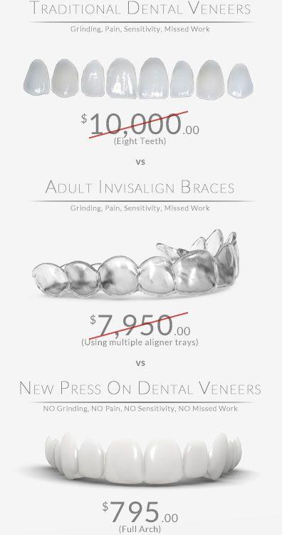 Traditional Dental Veneers vs Invisalign vs Press On Dental Veneers