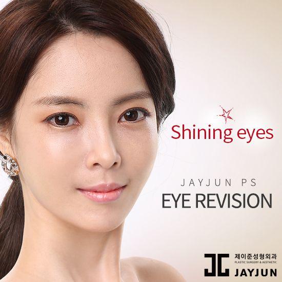 korea eye lifting korea droopy eyelid surgery korea double eyelid surgery Double…