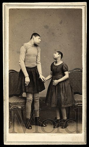 """""""Pinheads"""" Carte de visite, ca. 1865. Pinheads were microcephalic people who were often placed in freak shows and dressed as adult babies. Was this better than an asylum at the time?"""