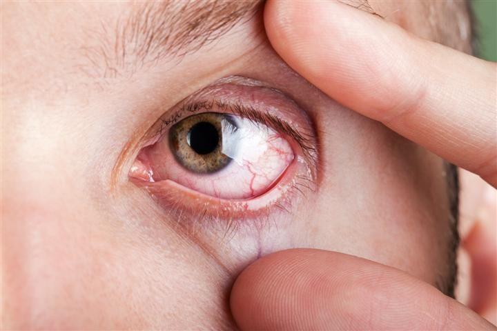 Лечение покраснения глаз зависит от причины его появления.