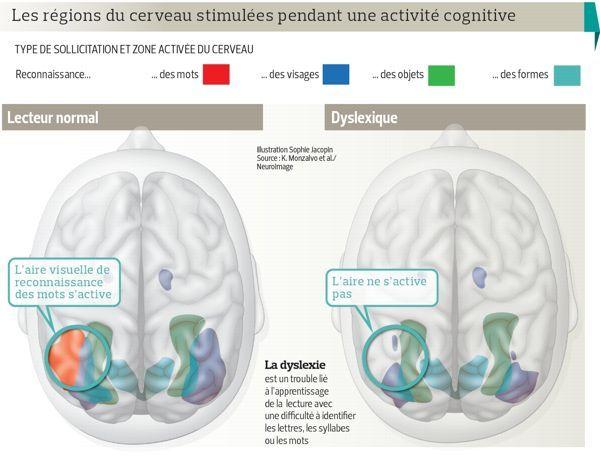 L'imagerie du cerveau dévoile les secrets de la dyslexie | Actualité | LeFigaro.fr - Santé
