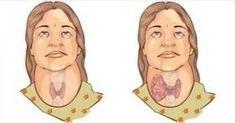 Ο θυρεοειδής βρίσκεται στην βάση του λαιμού και επηρεάζει όλες τις λειτουργίες του μεταβολισμού στο σώμα μέσα από τις ορμόνες που παράγει. Έτσι, όταν δεν λ