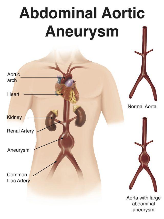 Screening for Abdominal Aortic Aneurysm