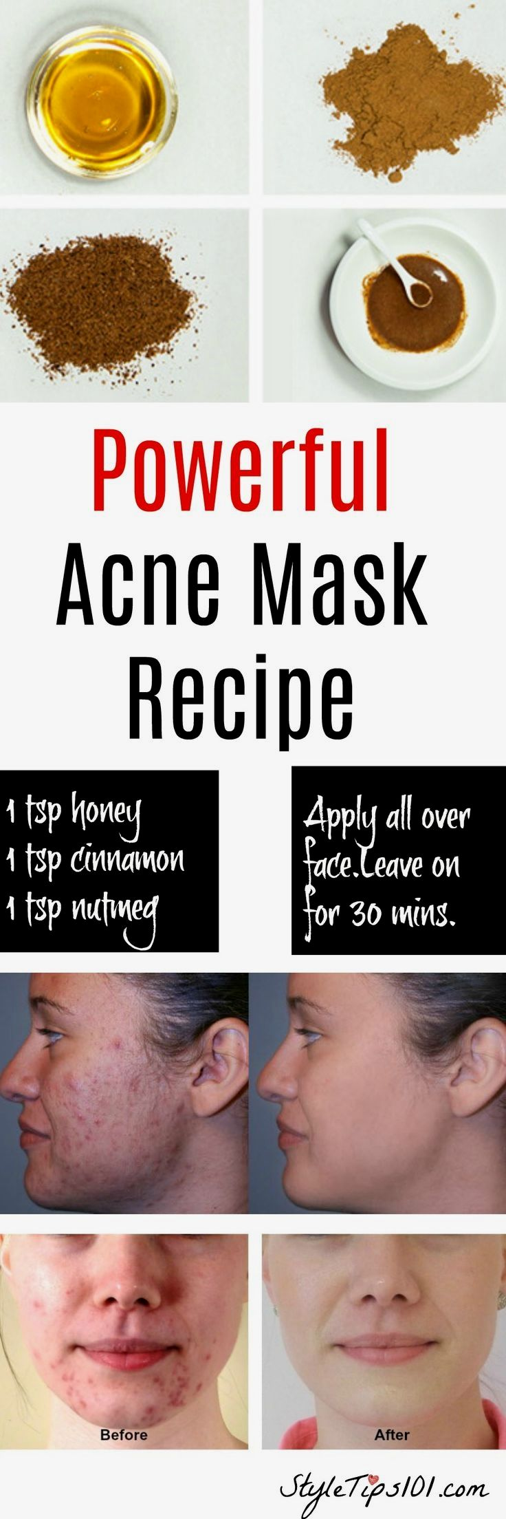This homemade natural acne mask uses honey cinnamon and nutmeg to this homemade natural acne mask uses honey cinnamon and nutmeg to penetrate deep into the skin and remove bacteria while gently cleansing you lo solutioingenieria Gallery