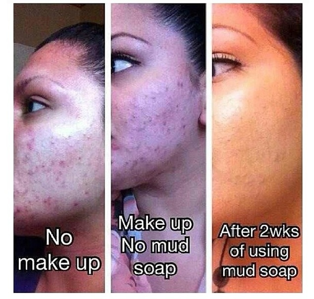 Got to love these results. Seacret mud soap is amazing Www.seacretdirect.com/Amytough