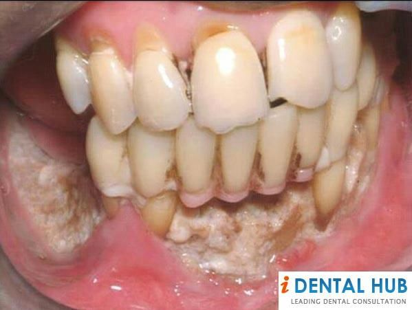 oral hygiene and disease essay My topic is poor oral hygiene and the effects it can have on your teeth, gums and body  i have to write a 1500 word persuasive essay on this outline thesis: brushing and flossing your teeth twice a day helps prevent cavities and.