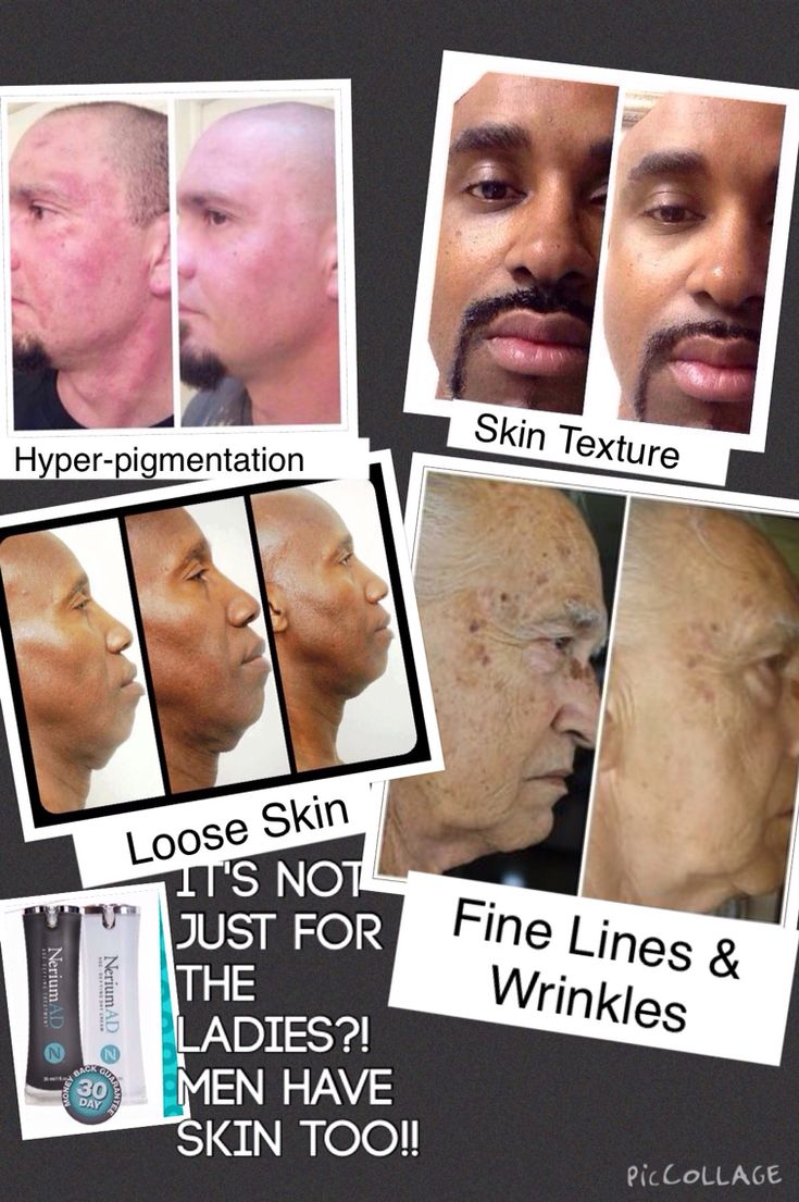 www.freshskinrenewal.nerium.com For the men also! Proven patented and real results!!!