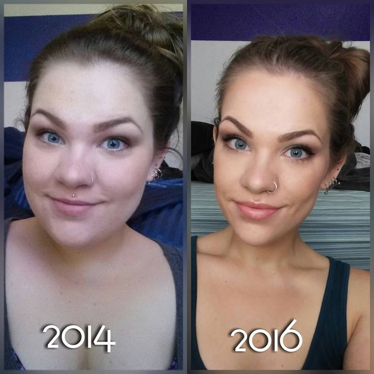 Weight loss, face transformation, fat loss