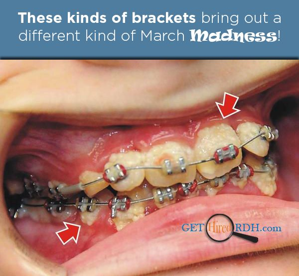 44 Best Images About Orthodontics On Pinterest Smile