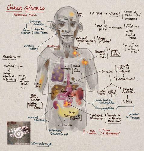 La Chuleta de Osler: Gastroenterología - CANCER GASTRICO clínica