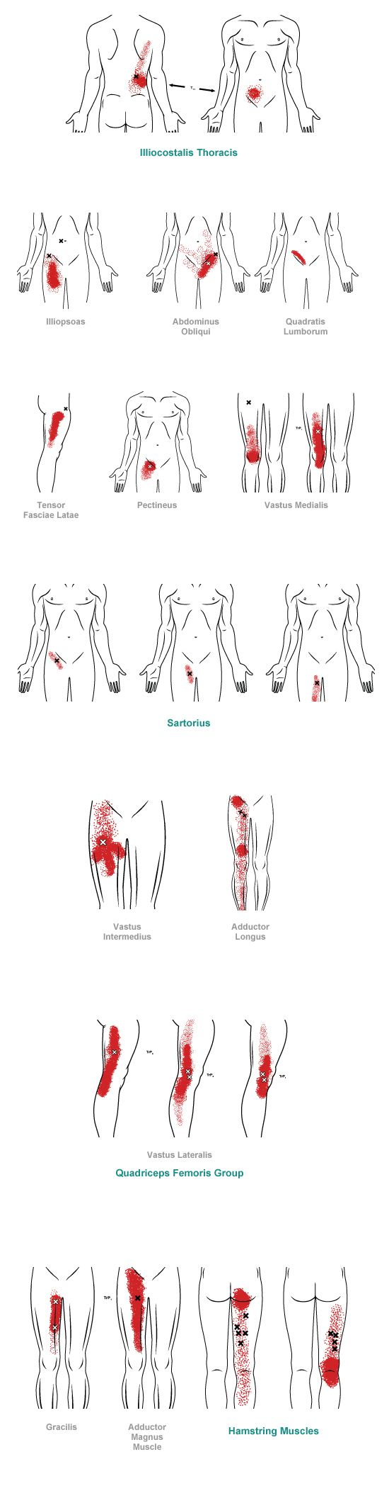 trigger point referral pain pattern for the groin & thigh