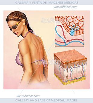 Bronceado de piel por activación de melanocitos. Ilustración de una mujer en traje un baño, expuesta al sol y ...