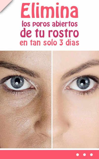 Elimina los poros abiertos de tu rostro en tan solo 3 dias