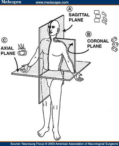 axial coronal sagittal planes - Google Search | NMB ...