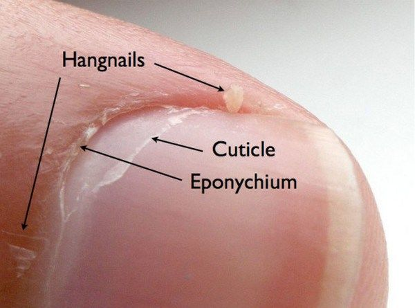 The Correct Way to Get Rid of Hangnails There are few things less annoyingly painful than a hangnail. We've all gotten them before – they're those pieces of cuticle that have broken free from your nail bed and are quite literally hanging