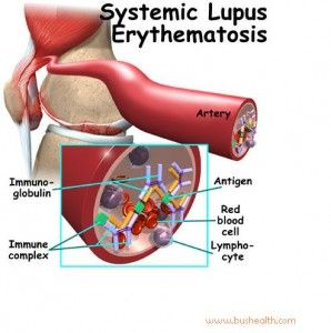 1000 Discovery; What is Systemic lupus erythematosus (SLE)?