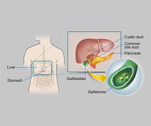 Cholecystitis and Cholelithiasis