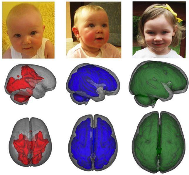 Confirman con imágenes el beneficio cerebral de la leche materna