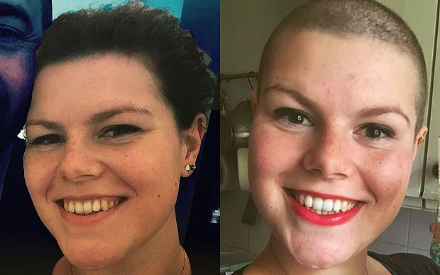 Jess Walker shaved her hair off so she wouldn't be able to pull it out - Trichotillomania a personal story