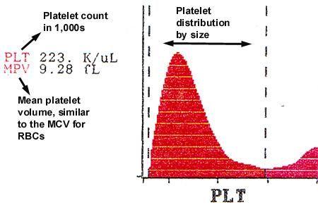 Image result for mean platelets volume