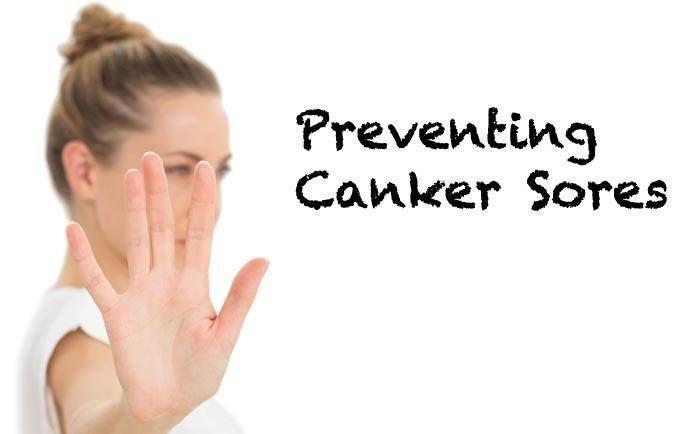 preventing canker sores