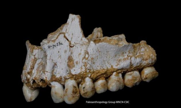"""Neanderthal e mal di denti"""