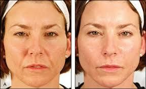 nasoloabial smile line fillers botox nyc