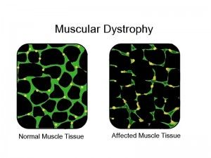 Signs And Symptoms Of Muscular Dystrophy Disease