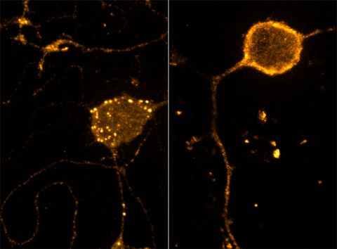 (Image caption: After treatment with the DAMGO, an endogenous mu-opiod  receptor is internalized in endosomes (above, left) and after DAMGO  washout is recycled back to the cell surface (above, right))Researchers Discover How Pain Fine-Tunes Pain ReliefAt the cellular level, pain and pain relief are caused by two  different signaling pathways. But the two pathways aren't necessarily  independent of one another, according to a study published by Carnegie  Mellon researchers in Cell…