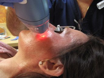 Easy Fractional Laser Treatments