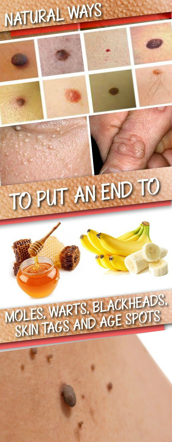 Natural Ways to Put an End to Moles, Warts, Blackheads, Skin Tags and Age Spots do now