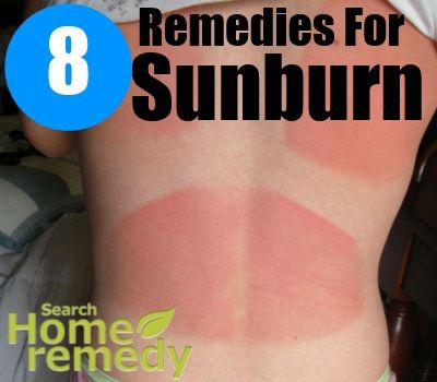 Search Home Remedy - http://www.searchhomeremedy.com/eight-excellent-home-remedies-for-sunburn/