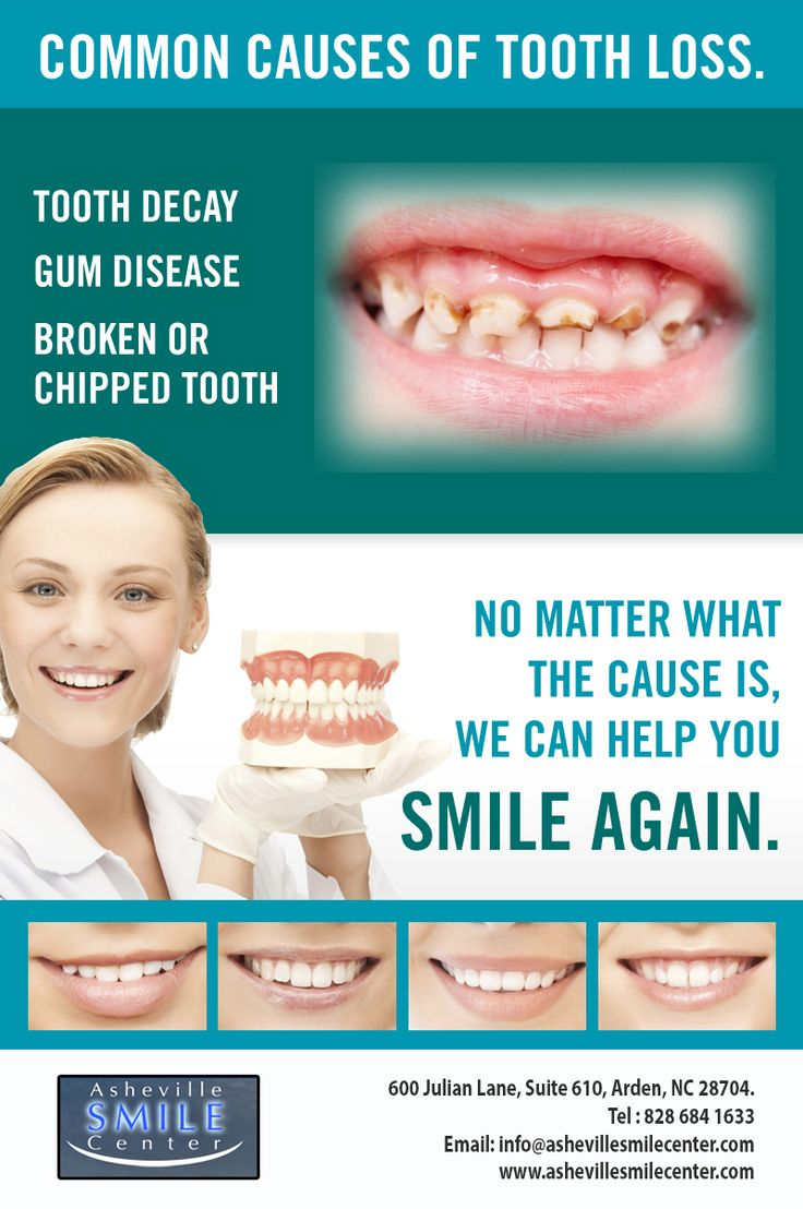 No matter what the cause is, we can help you SMILE