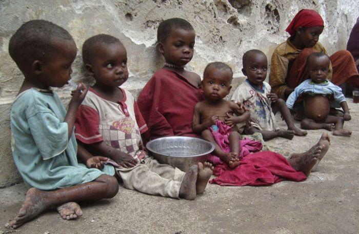 UNICEF: 1,4 JUTA ANAK DI SOMALIA DERITA GIZI BURUK AKUT