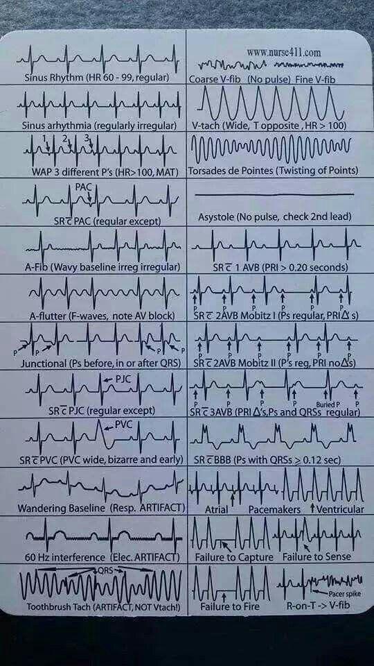 The ultimate guide to EKG ECG interpretation