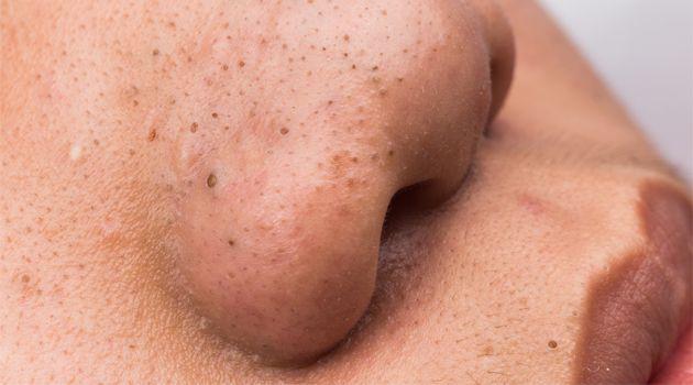Muito comuns na região do nariz, os cravos são pontinhos pretos que surgem quando os poros da pele ficam obstruídos. A boa notícia é que é possível acabar com os cravos de forma simples, com alguns truques caseiros.Leia também:Como fazer limpeza de pele em casaApertar cravos e espinhas causa cicatrize