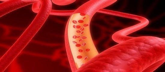 Esiste sia il colesterolo buono che quello cattivo. Il colesterolo buono HDL (lipoproteine ad alta densità) permette l'eliminazione di quello cattivo.