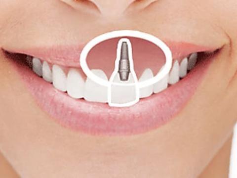 Feste schöne Zähne an nur einem Tag! Gewinnen Sie neue Lebensqualität mit Zahnimplantaten. Mehr dazu