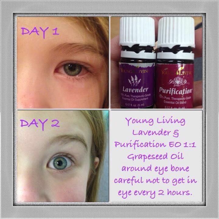 Pin On Young Living Oils