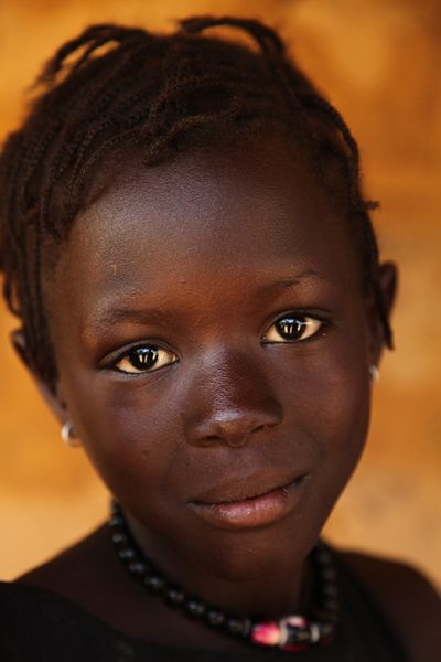 A girl in Guinea - Bissau, one of the world's poorest countries.  To achieve equity for all children, current global, social and economic disparities that deprive children of the right to reach their full potential must be redressed