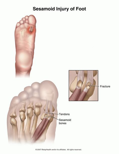 Summit Medical Group - Sesamoid Injuries of the Foot